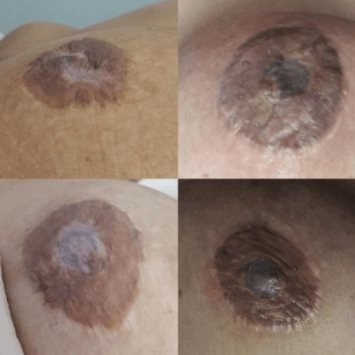 micropigmentacion y mesoterapia, otros ejemplos