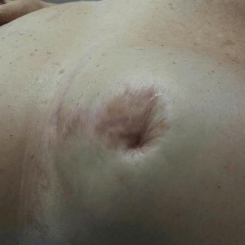 micropigmentacion y mesoterapia, sin tratamiento