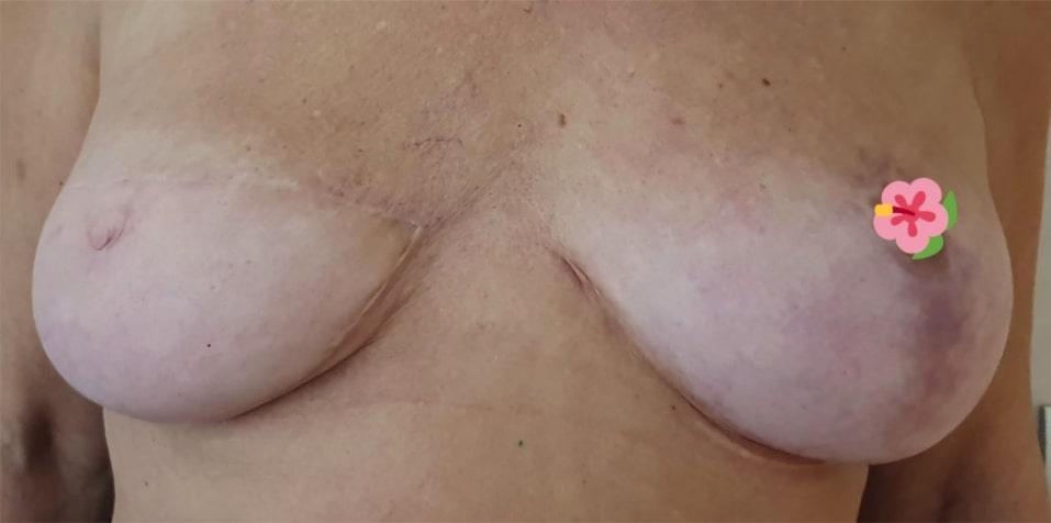 después tratamiento mama 01