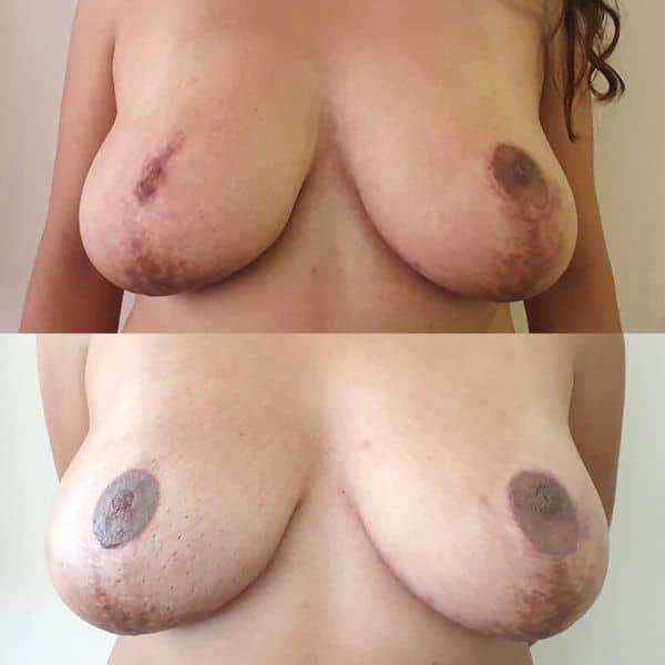 cuidados básicos  tratamiento de micropigmentación