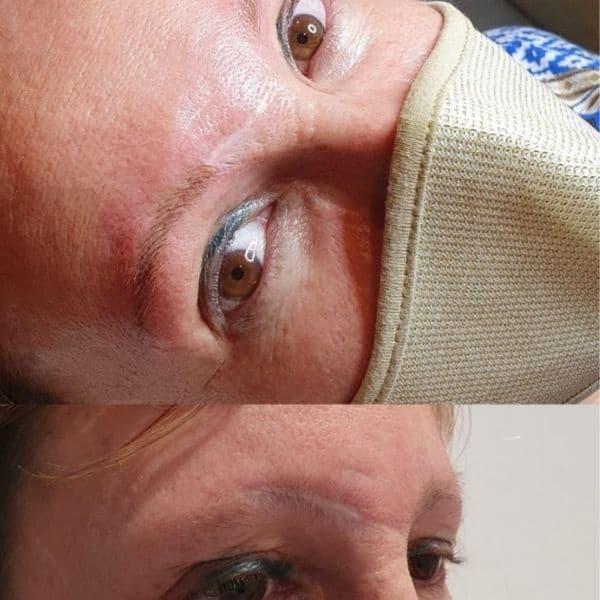 Ejemplo de micropigmentación ceja de una cicatriz